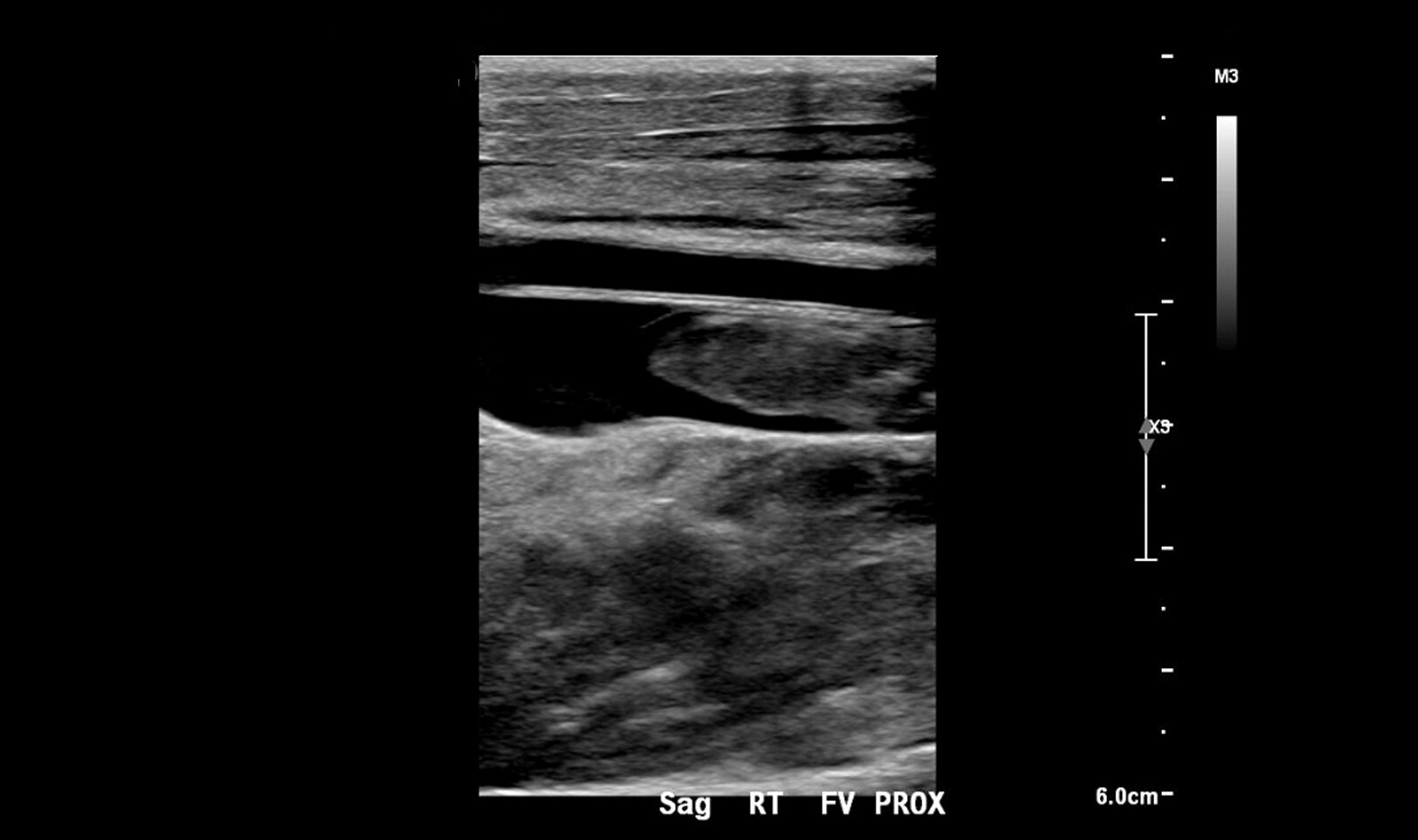 Image of point of care ultrasound hypotension cardiac ultrasound    Online PoCUS Training