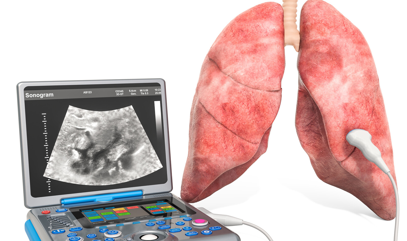 Image of Point of care system Pneumothorax Speckle tracking analysis Lung Ultrasonography    Online PoCUS Training