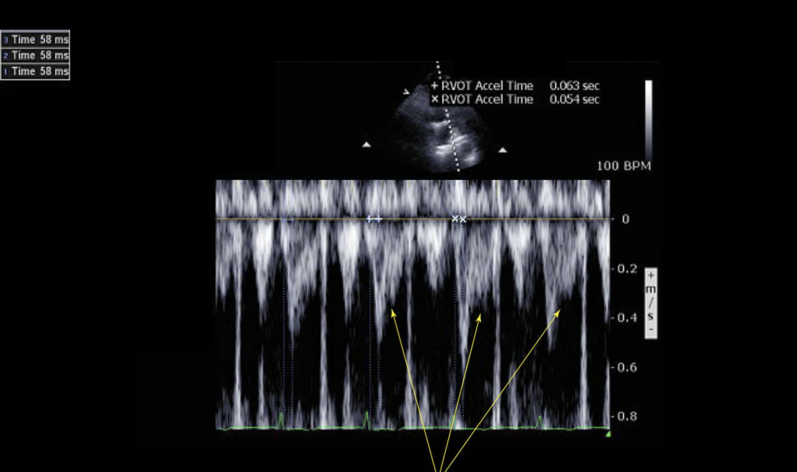 Image of pulmonary embolism echocardiography Doppler Ultrasound.    Online PoCUS Training