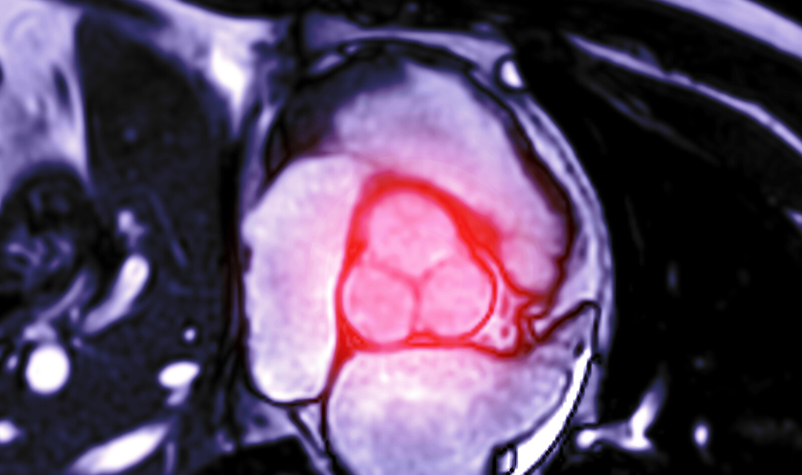 Image of valvular heart disease echocardiographic examination aortic stenosis    Online PoCUS Training